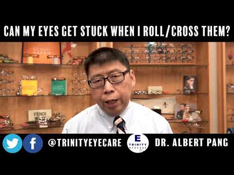 Can My Eyes Get Stuck When I Roll or Cross Them? | Dr. Pang, Trinity Eye Care