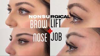 PDO Thread Lift: Brow Lift \u0026 Nose Job (Non-surgical)