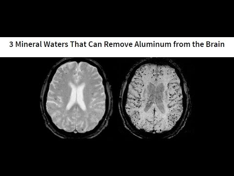 3 Mineral Waters That Can Remove Aluminum from the Brain
