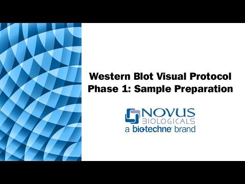 Western Blot Visual Protocol: Phase 1: Sample Preparation
