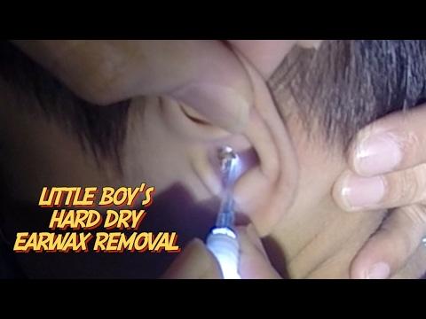 Little Boy's Hard Dry Earwax Removal