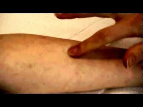 How to take a TB Skin Test