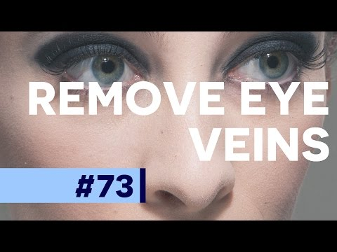 Remove Veins From Eyes - Photoshop CC Tutorial