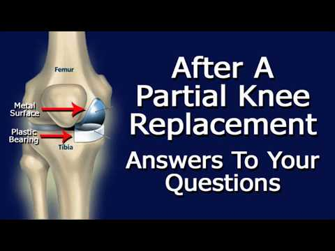 After Partial Knee Replacement Surgery:  Answers To Your Questions