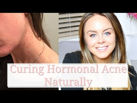 Hormonal Acne + Coming Off The Pill: Curing Hormonal Acne Without Accutane