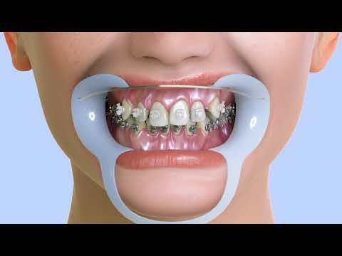 Dental Braces - Dr. Sarabjeet Singh ( Chandigarh Orthodontics)