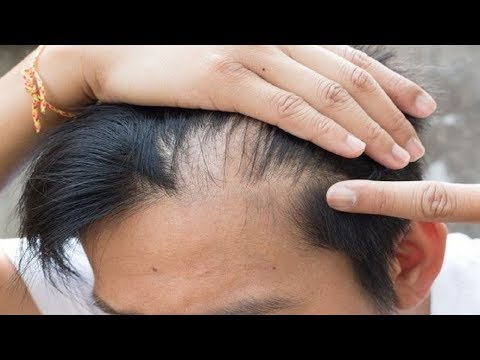 How to Make Hair Grow in Bald Spots.