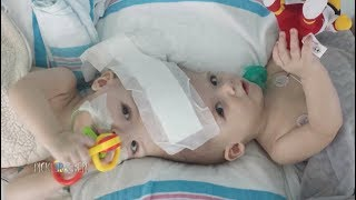 The Unbelievable Story and Live-Saving Surgery of Conjoined Twins - Pickler & Ben