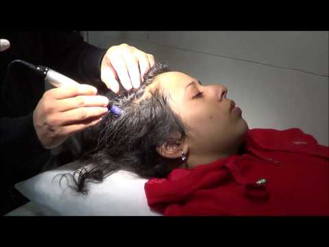 PRP Treatment for Hair Thinning in Ludhiana
