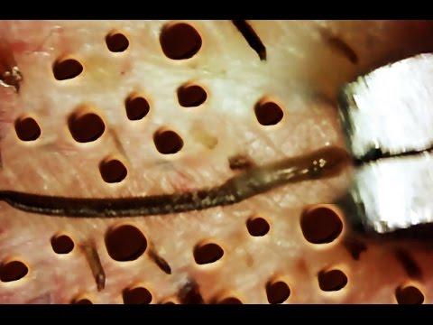 Trypophobia   Fear of Holes