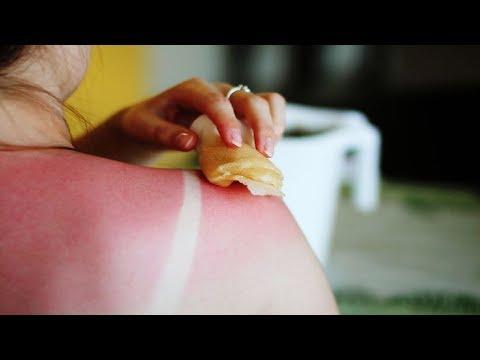 5 Home Remedies for Sunburn.
