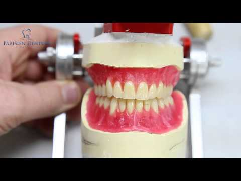 How Dentures Are Made