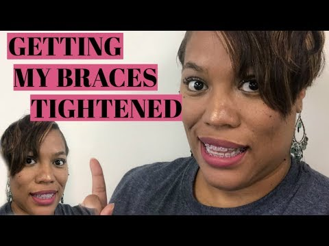 Getting My Braces Tightened for the FIRST Time
