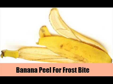 8 Natural Treatments For Frost Bite