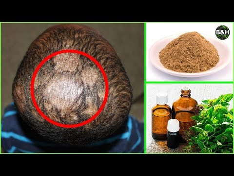 Ringworm Hair Loss Treatment | How To Get Rid of Scalp Fungus Instantly (Tinea Capitis)