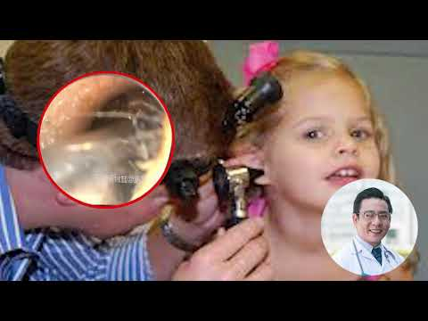 Xxx Mp4 Cute Children Ear Wax With Doctor 3gp Sex