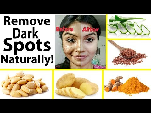 How to Removes  Dark Spots On Your Face / 100% Natural /how to get rid of dark spots