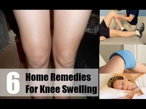 6 Home Remedies For Knee Swelling