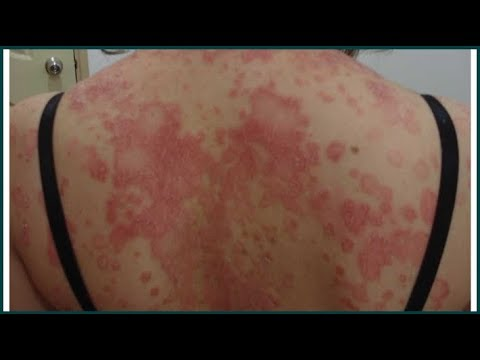 How To Get Rid of Psoriasis Fast : Best Home Remedies For Psoriasis (With Pictures)