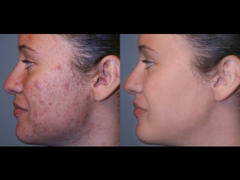 How To: Get Rid of Acne Scars Discolouration uneven skin tone Hyperpigmentation