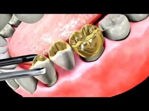 What are Dental Bridges? Replace Missing Teeth.