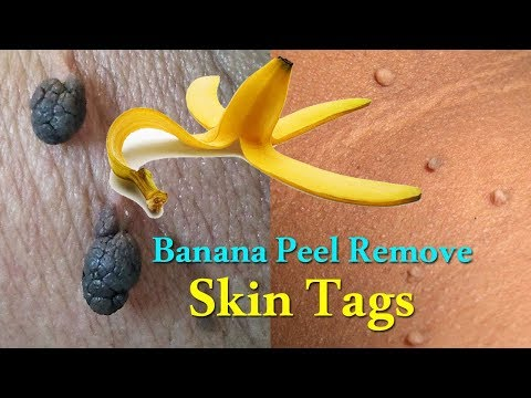 Banana Peel Remove Skin Tags | Skin Tags Removal Naturally | Home Remedies to Get Rid of Skin Tags