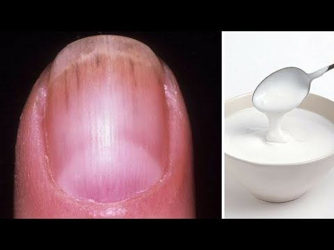 Natural Home Remedies for Black Lines on Nails| How to get rid of ridges in fingernails (In Hindi)