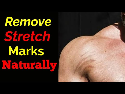 How to Remove Stretch Marks Naturally In Hindi 2018   Get Rid of Stretch marks Tips 2018