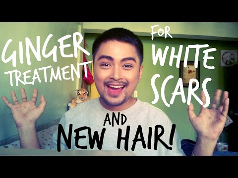 GINGER TREATMENT FOR WHITE SCARS! + NEW HAIR!