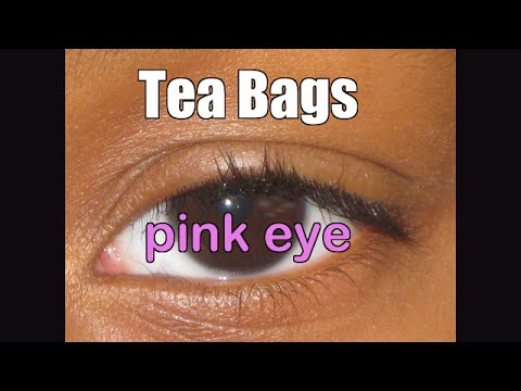 Tea Bags to treat Viral Pink Eye and homeschool question