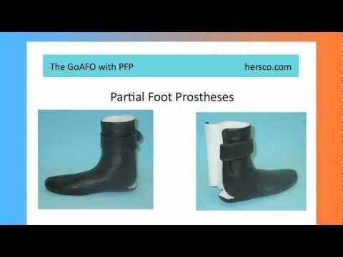 Partial Foot Amputees Part 2