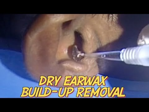 Dry Earwax Build-up Removal