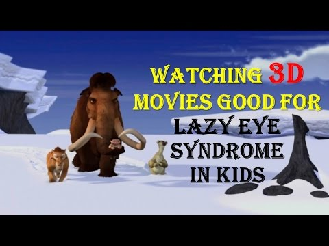 Watching movies good for Lazy Eye Syndrome in Kids