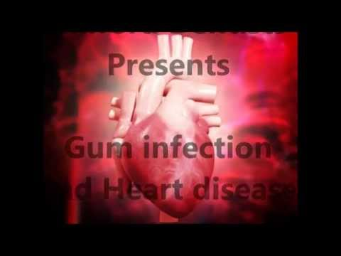 Gum infection and Heart Disease