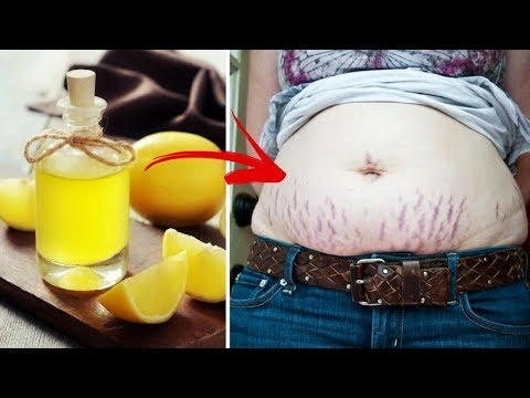 This Simple Lemon Trick Will Help You Eliminate Stretch Marks For Good