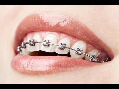 Foods to Eat and Avoid with Braces