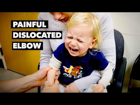 PAINFUL DISLOCATED ELBOW (nursemaids elbow) | Dr. Paul
