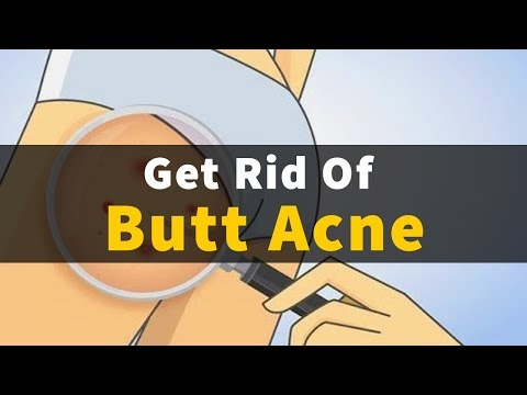How To Get Rid Of Butt Acne Fast Naturally | Home Remedies