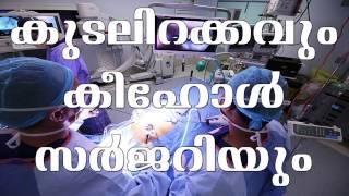 കൂടൽ ഇറക്കവും കീഹോൾ സർജറിയും| Arogyvicharam | Tv Live Asia.