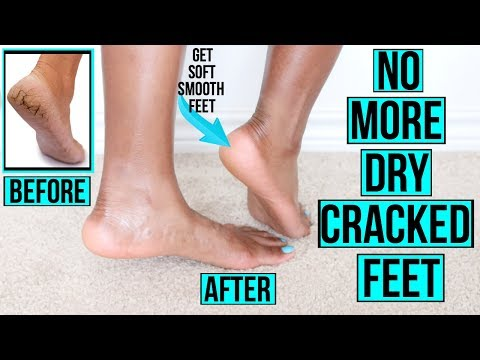 How to Get Rid of Dry Cracked Feet FAST & NATURALLY | AT HOME Remedies & MORE