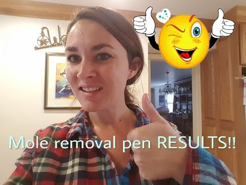 RESULTS of the Skin Spot/Mole Tattoo Removal Pen! 1 week later