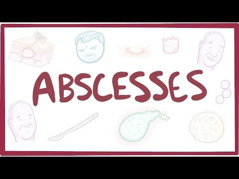 Abscesses - causes, symptoms, diagnosis, treatment, pathology