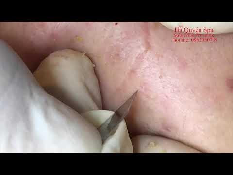 Xxx Mp4 Acne Treatment In Ha Quyen Spa On 09 06 2019 Điều Trị Mụn Tại Hà Quyên Spa 3gp Sex