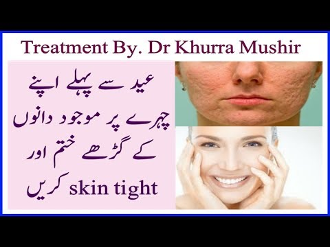 How to REMOVE Pimples, Acne,Dark spots, Scars and Black Spots in just 3 Days| Dano ka ilaj By Rani G