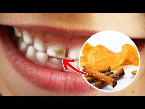 The Top 10 Foods That Severely Harm Your Teeth, foods that damage teeth