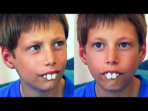 Kids At School Made Fun Of His Teeth  A Few Years Later He Showed Them All!