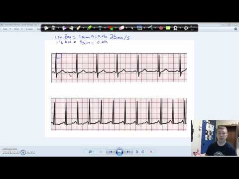 Calculate Heart Rate from an ECG