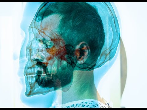 X-Ray: The Unknown Quantity - Trailer