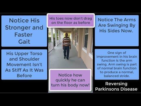 Reversing Parkinsons Disease Naturally Walking Preview