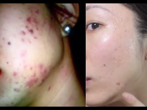 HOW TO GET RID OF ACNE SCARS! BANISH.COM